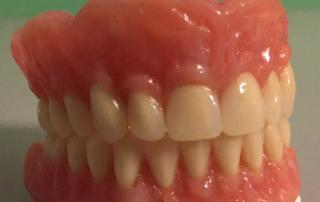 Natural look-dentures